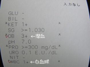 尿検査、2回目.JPG